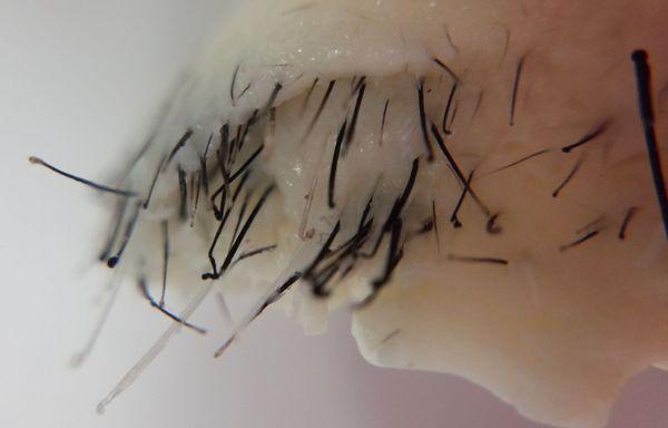 鼻毛ワックス 使用後の写真